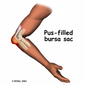 elbow_bursitis_cause02