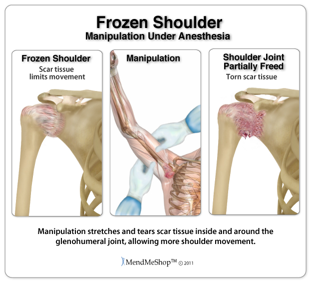 frozen shoulder Up to five per cent of adults develop a frozen shoulder at some point common, cases appear after a small injury which results from stretching or over-reaching.