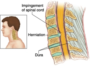 cervical myelopathy1