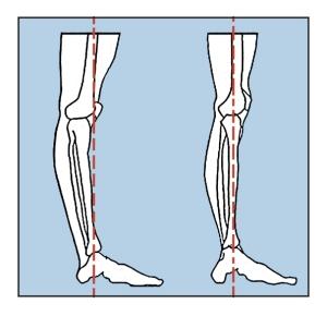 Knee Hyper-extended